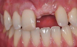 dent absente avant implant