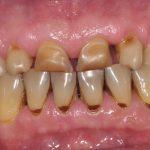 dents jaunes tâchées