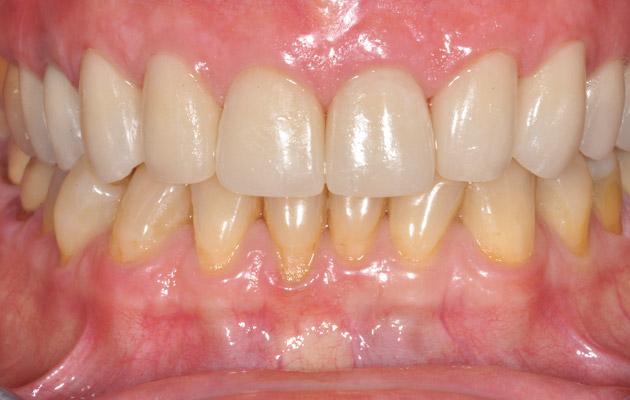 Dents usées après pose des couronnes