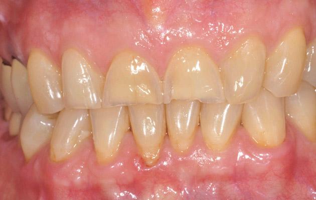 Dents usées avant pose de couronnes