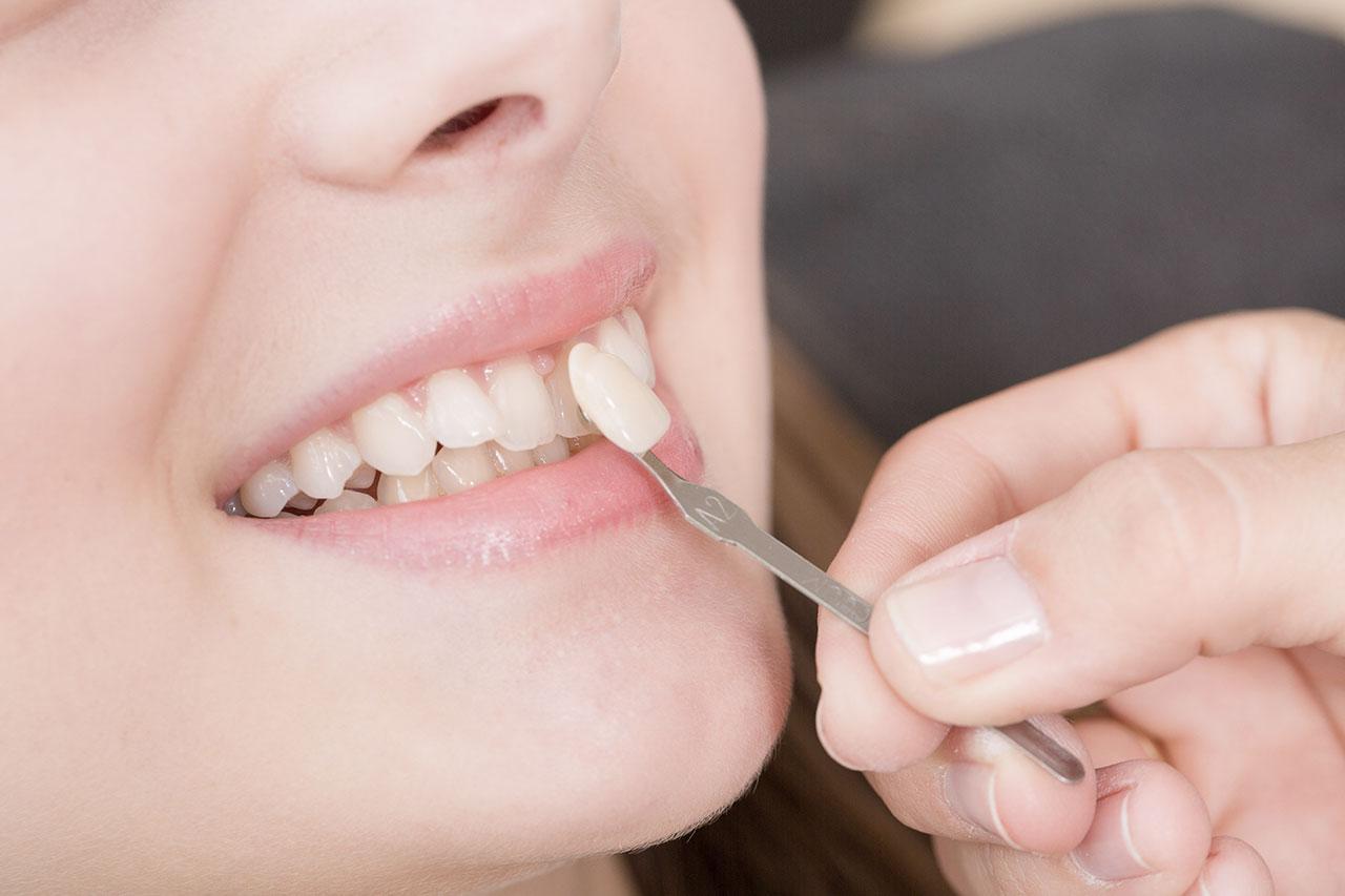 facettes dentaires en céramiques