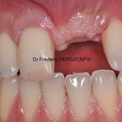 il me manque une dent - avant implant