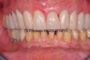 restaurations dentaires provisoires