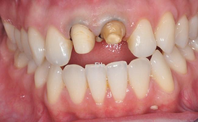 2 dents abîmées suite à un traumatisme