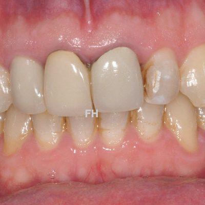 3 dents de devant abîmées