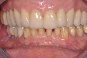après soins dentaires