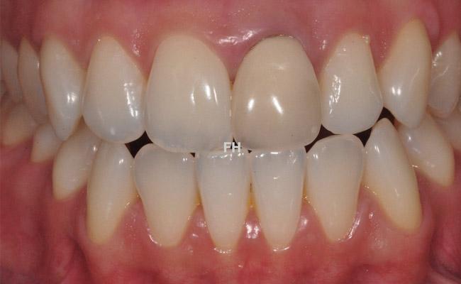 avant remplacement d'une dent abîmée