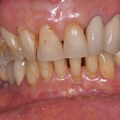 avant les soins dentaires