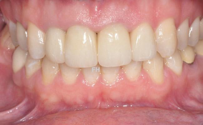 4 couronnes dentaires sur les dents de devant