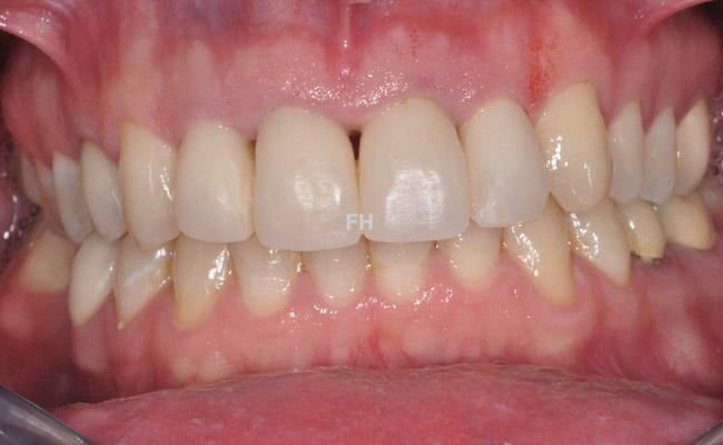 dents provisoires avant la pose de couronnes