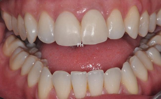 dents provisoires -remplacement dents abîmées