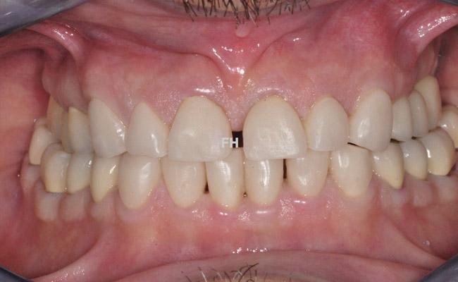 patient réhabilitation prothétique - dents provisoires