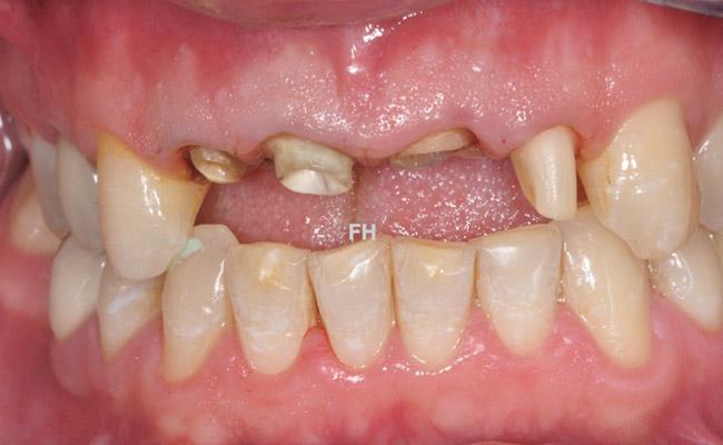 Dépose anciennes prothèses et préparation des dents avant la pose de couronne