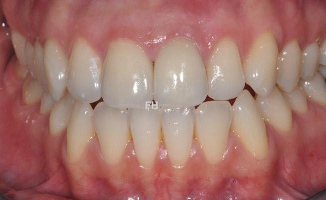 prothèse dentaire sur 2 dents