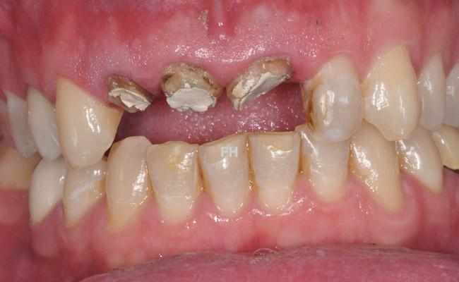 soins des dents de devant avant pose de couronnes