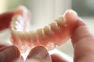 prothèse dentaire amovible : dentier