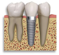 prothèse sur implant dentaire