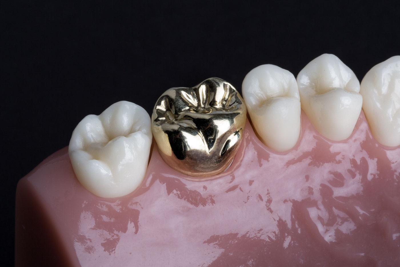 couronne dentaire en or